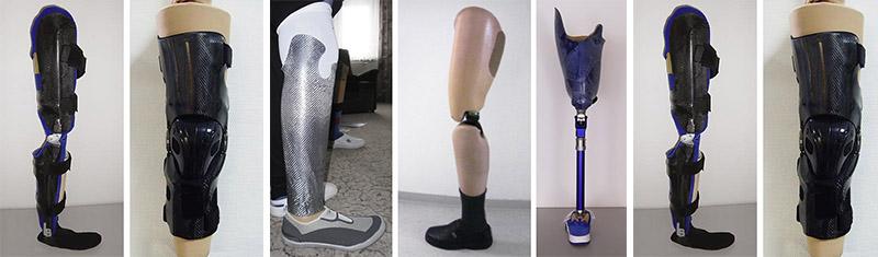 prothesen orthesen orthopädietechnik