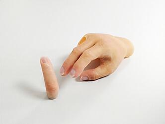 Silikon-Fingerprothese